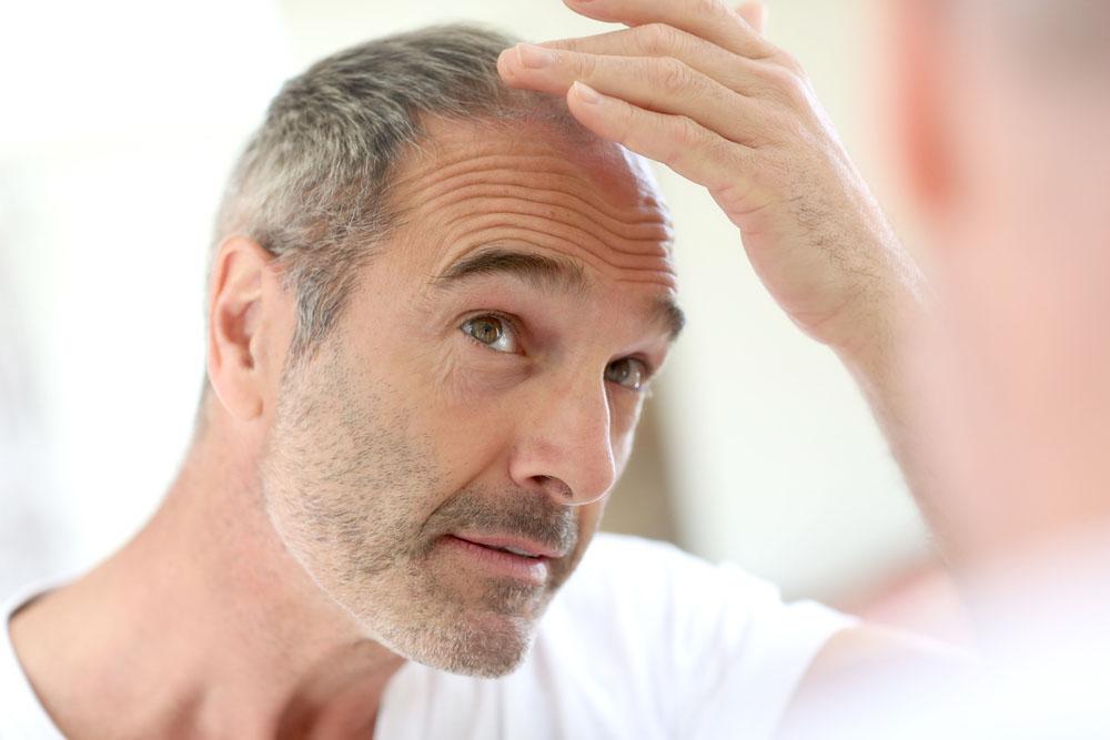 older-man-with-hair-loss-data